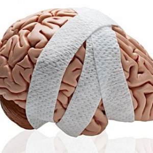brain injury1